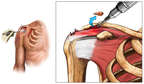 Acromioplasty - Shoulder Impingement Syndrome Surgery