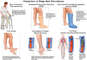 Prevention of Deep Vein Thrombosis (DVT) and Pulmonary Embolism