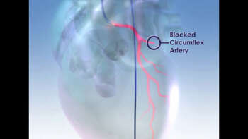 Blocked Circumflex Coronary Artery with Balloon Angioplasty and Stent Repair