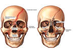 Multiple Facial Fractures with Surgical Fixation