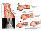 Continued Right Wrist Complaints with Proposed Surgical Fusion
