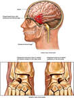 Brain and Ankle Injuries