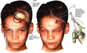 Boy with Post-accident Scalp Avulsion with Surgical Repairs