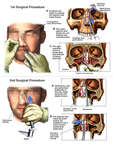 Surgical Reconstruction of the Nasal Fractures with Subsequent Osteotomy and Realignment of the Nasal Septum