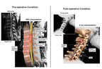 Cervical Spine Injuries with Multilevel Surgical Fusion