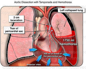 Aortic Dissection with Tamponade and Hemothorax