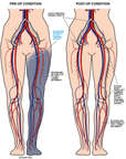 Left Femoral Artery Occlusion with Bypass Procedure