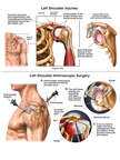 Impingement Syndrome of the Left Shoulder with Surgery