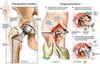 Right Hip Replacement with Surgical Revision