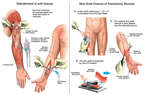 Debridement of soft tissues  Skin Graft Closure of Fasciotomy Wounds