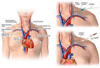 Placement of Venous Catheter