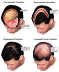 Progression of Scalp Injury