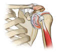 Labral Tear and Synovitis in the Shoulder