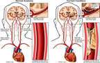 Carotid Artery Blockage with Resulting Brain Damage