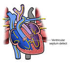 Ventricular Septal Defects