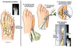 Right Foot Injury and Surgical Repair