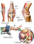 Right Knee Injuries with Arthroscopic Repair