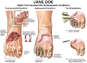 Right Foot Injuries with Subsequent Conditions