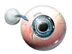 IOL Placement and Cornea Replacement