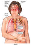 Female Figure with Post-accident Injuries to the Head, Brain, Thorax and Right Hand