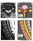 C5-6 Cervical Disc Herniation with MRI Interpretation