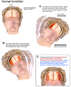 Mechanism of Closed Head Injury