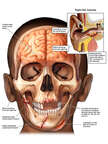 Child with Post-accident Head, Brain and Ear Injuries