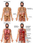 Crush Injuries of the Chest, Abdomen and Pelvis