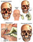 Post-accident Facial Fractures with Surgical Repair