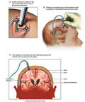 Brain Surgery - Placement of Intracranial Pressure Monitor (ICP)