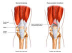 Tear of Left Quadriceps Tendon
