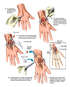 Right Wrist Arthritis with Surgical Fusion
