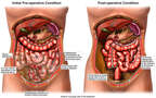 Crohn's Disease and Adhesions with Bowel Removal Surgery