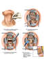 C4-5, Anterior Cervical Discectomy and Fusion with Instrumentation