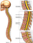 Multilevel Spinal Injuries