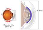 Cornea of the Eye