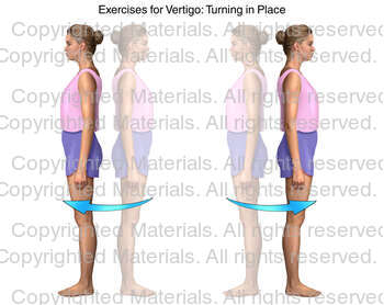 Exercises for Vertigo: Turning in Place