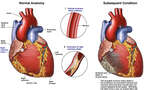 Coronary Artery Disease with Subsequent Heart Damage