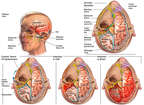 Chronic Progression of Intracranial Infection