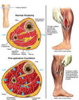 Compartment Syndrome with Surgical Fasciotomies