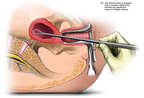 Dilatation and Curettage (D & C) Abortion Procedure