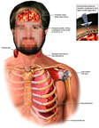 Head, Neck, Thorax and Shoulder Injuries