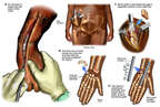 Proposed Right Wrist Fusion Surgery