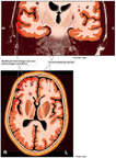 Persistent Brain Injuries