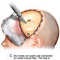 Craniotomy with Evacuation of Subdural Hematoma