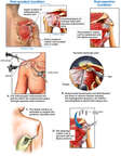 Shoulder Injuries with Subsequent Surgical Repairs