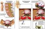 Lumbar Disc Injuries with Initial Laser Disc Decompression