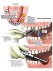 Development of Osteomyelitis and Dental Implant Removal