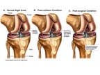 Chondral Fracture of the Knee