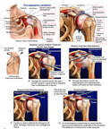 Left Shoulder Injuries with Arthroscopic Repairs Manipulation Under Anesthesia-MUA